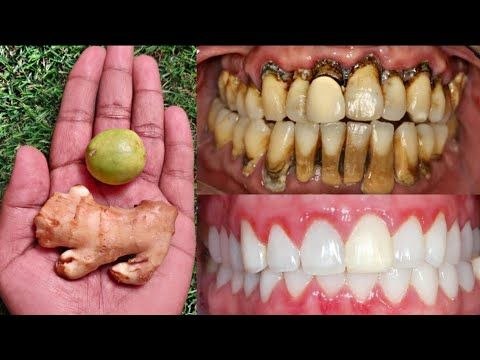 Gum and Teeth Fortifier Tips