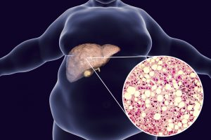 The Non-Alcoholic Fatty Liver Disease Solution Reviews - The Truth About Fatty Liver