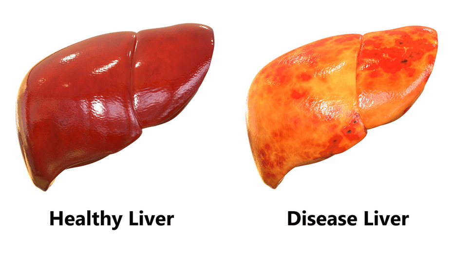 The Non-Alcoholic Fatty Liver Disease Solution Book Review - Differentiate Healthy & Disease Liver