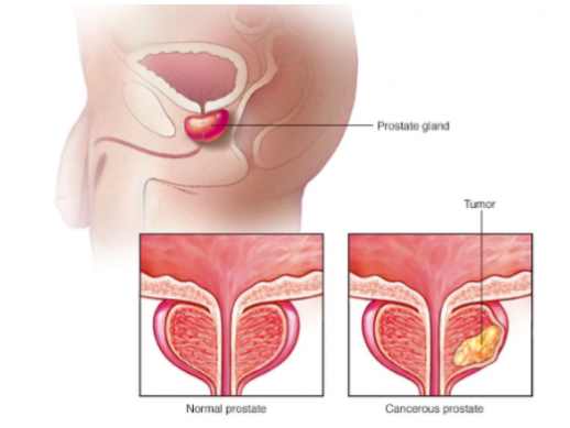 Advanced Prostate Formula Supplement Reviews